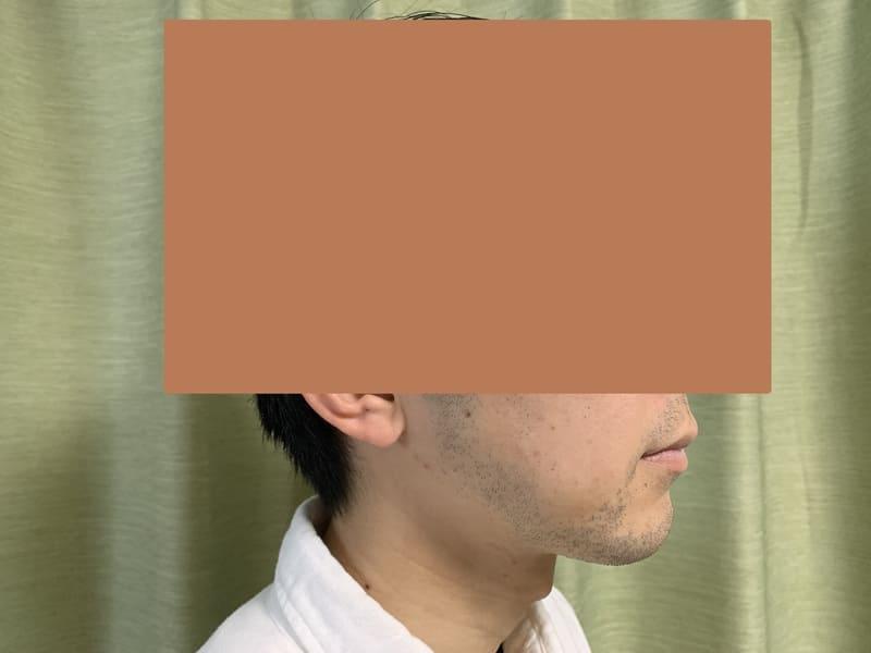 湘南美容クリニック ヒゲ脱毛